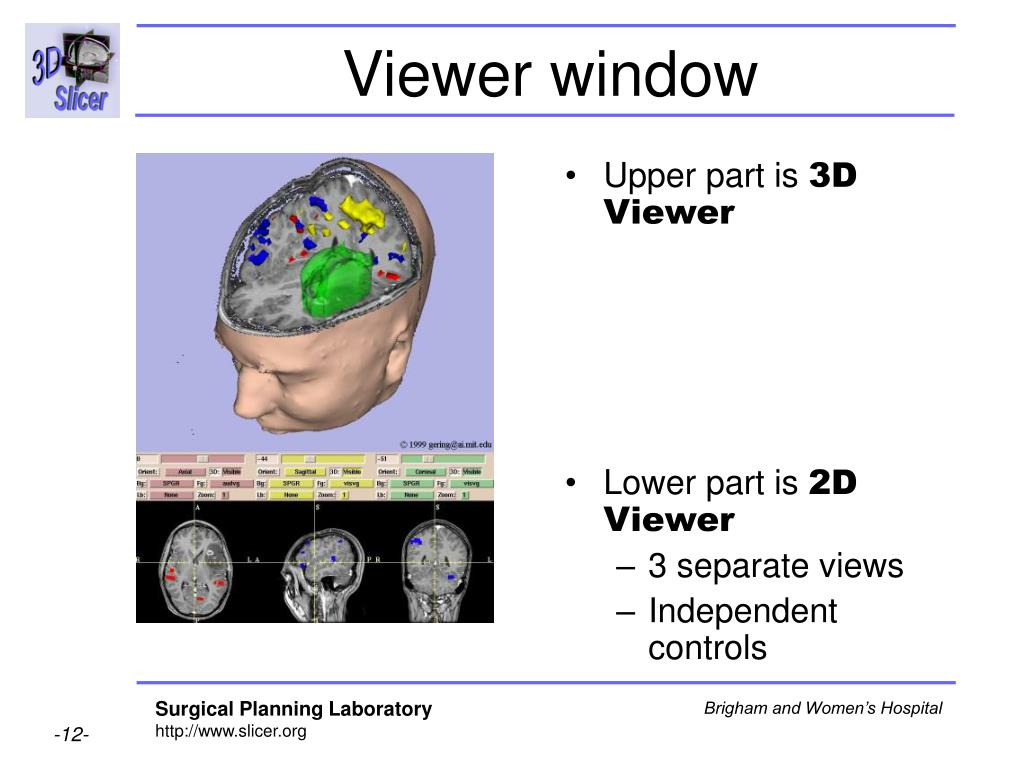 Viewer window