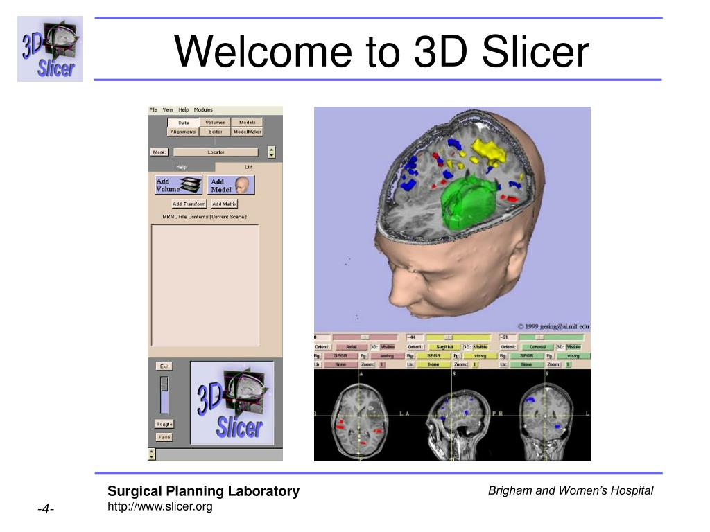 Welcome to 3D Slicer