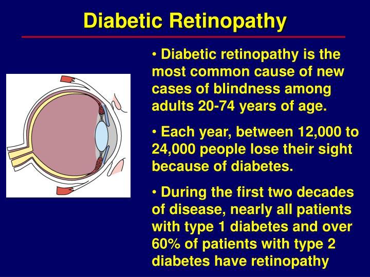 Diabetic retinopathy1