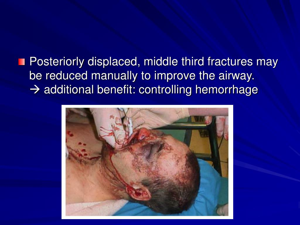Posteriorly displaced, middle third fractures may be reduced manually to improve the airway.