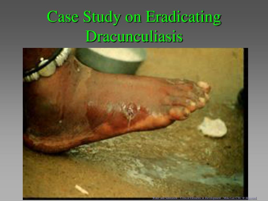 Case Study on Eradicating Dracunculiasis