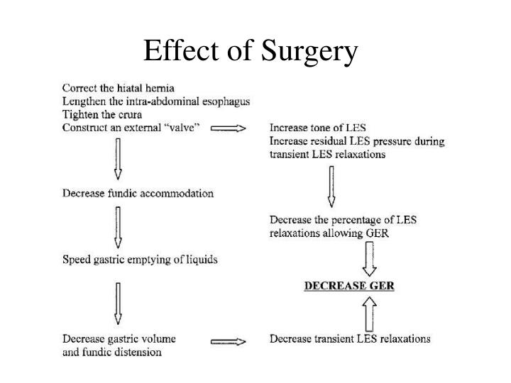 Effect of Surgery