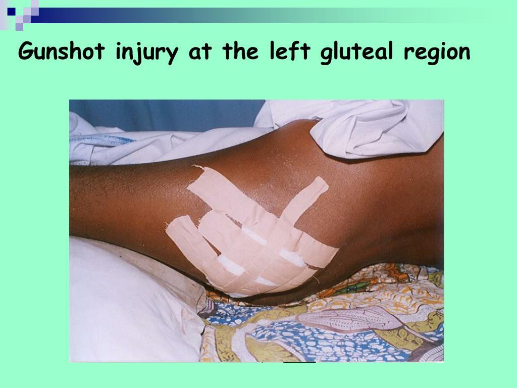 Gunshot injury at the left gluteal region