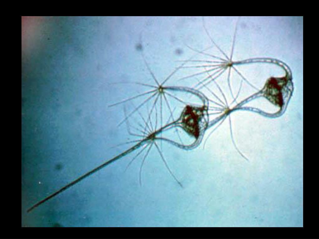 18. Dinoflagellate plankton