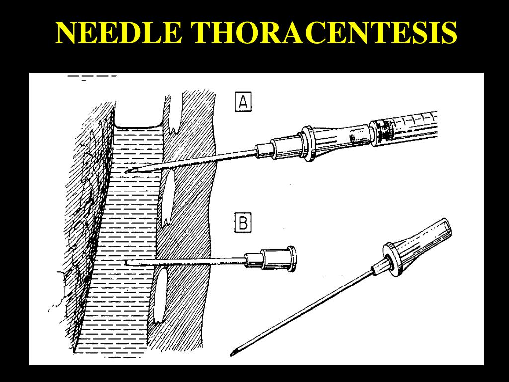 NEEDLE THORACENTESIS