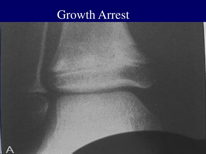 Growth Arrest