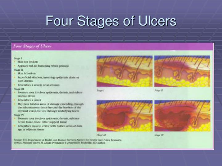 Four Stages of Ulcers