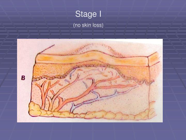 Stage I