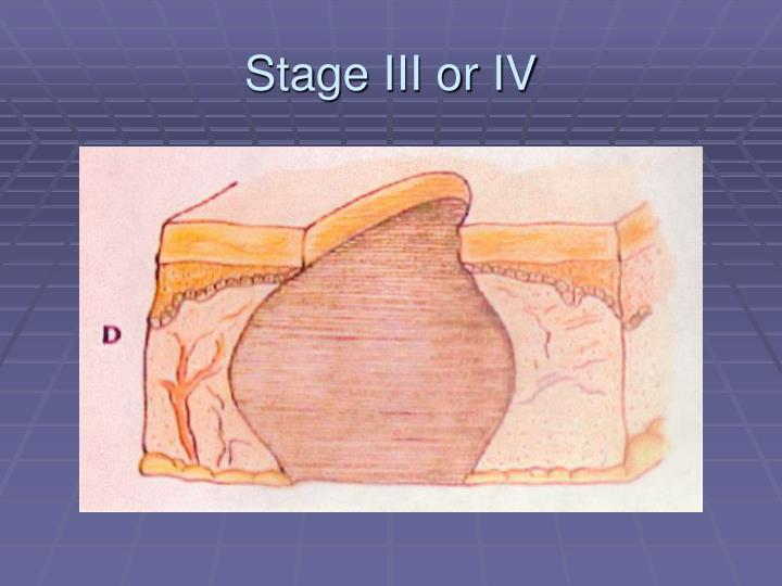 Stage III or IV