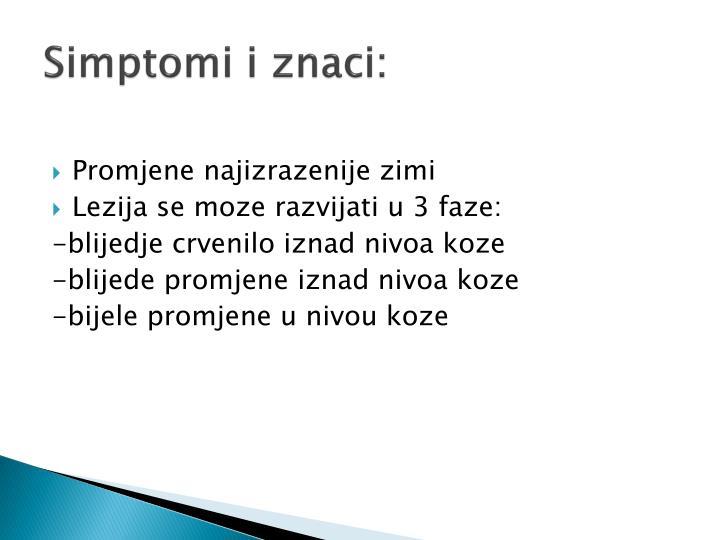 kortikosteroidnim kremama