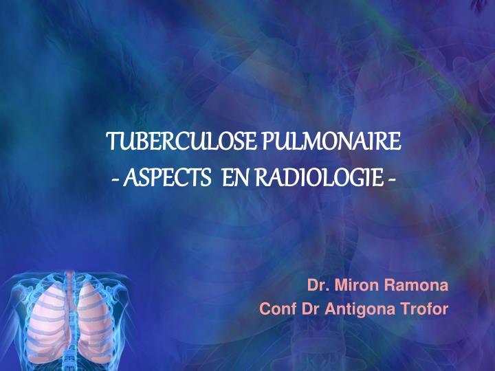 tuberculose pulmonaire aspects en radiologie n.