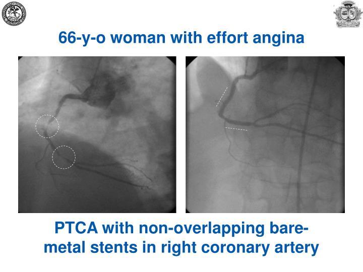 66-y-o woman with effort angina