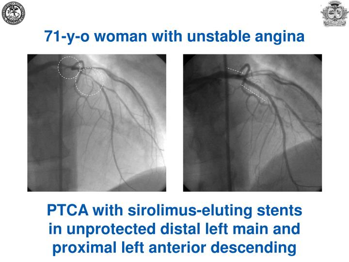 71-y-o woman with unstable angina