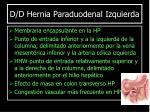 d d hernia paraduodenal izquierda