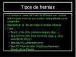 tipos de hernias