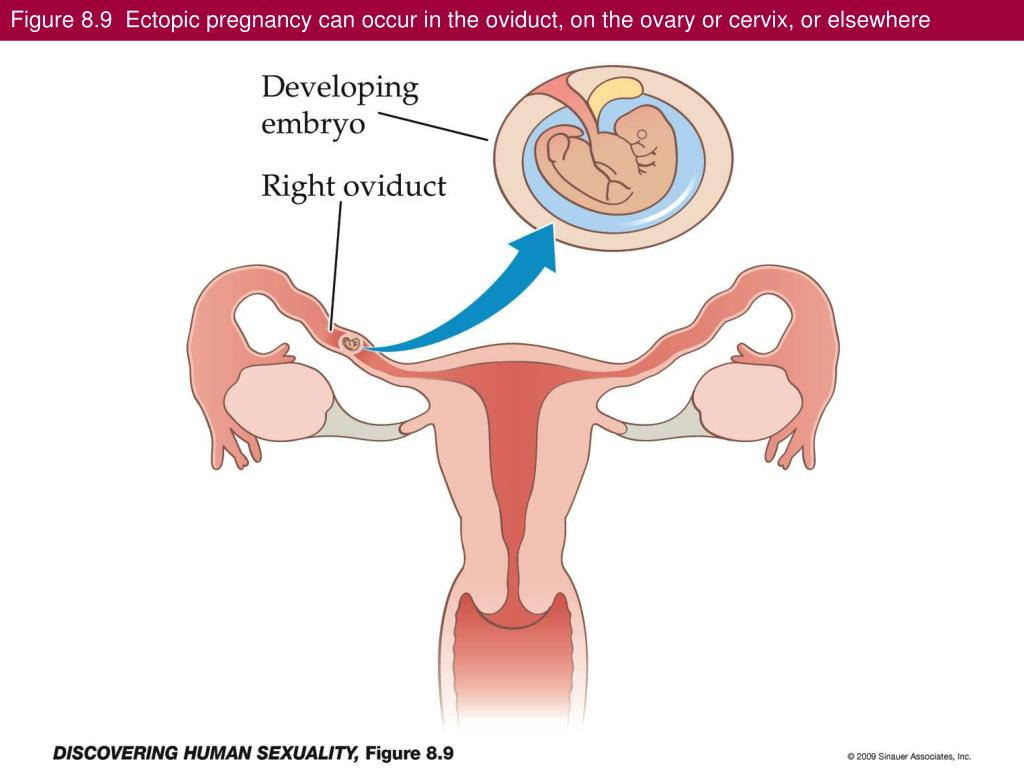 Figure 8.9  Ectopic pregnancy can occur in the oviduct, on the ovary or cervix, or elsewhere