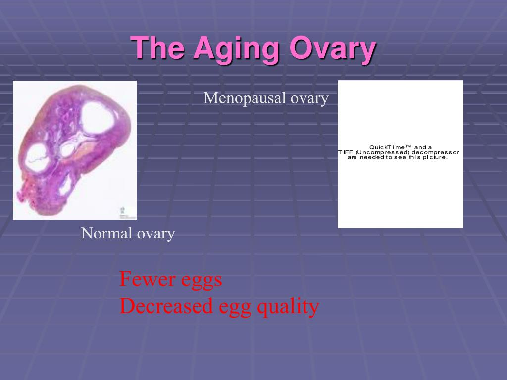 The Aging Ovary