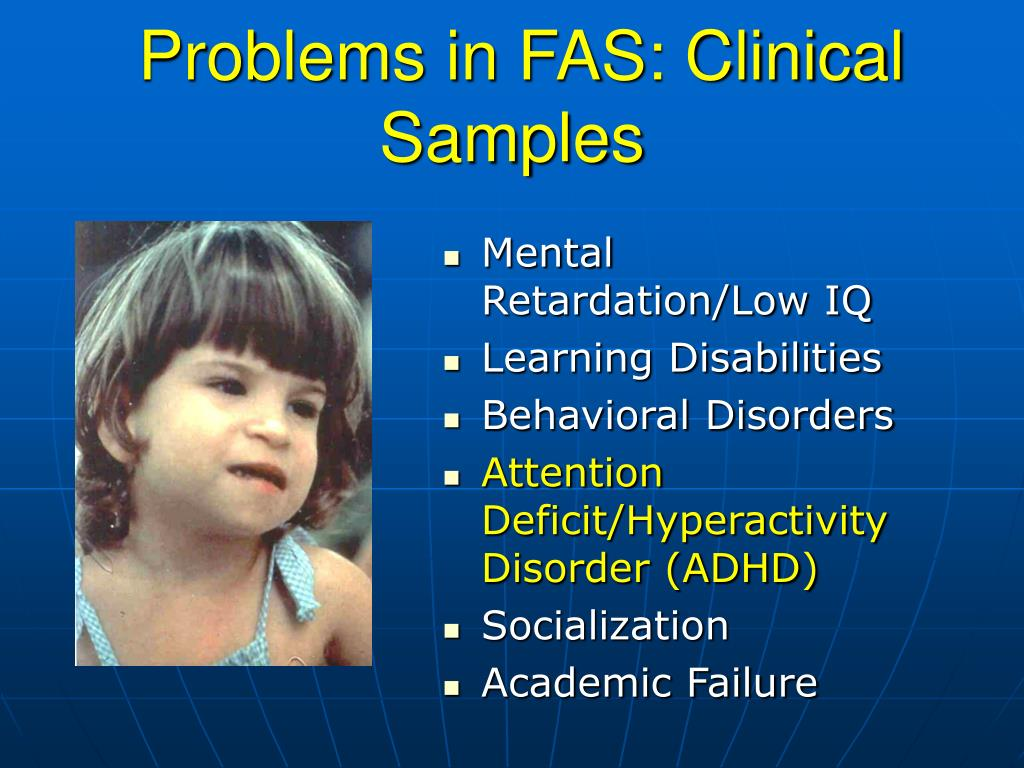 Problems in FAS: Clinical Samples