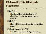12 lead ecg electrode placement