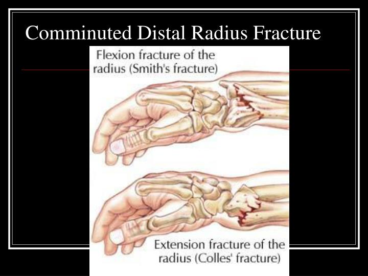 Comminuted Distal Radius Fracture