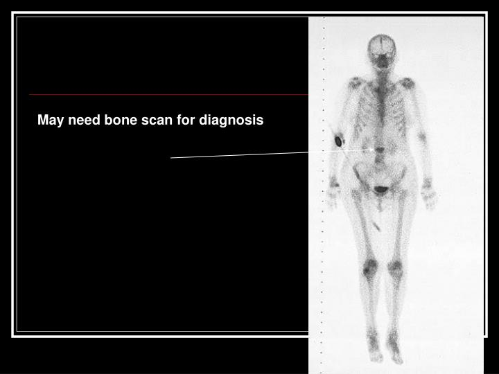 May need bone scan for diagnosis