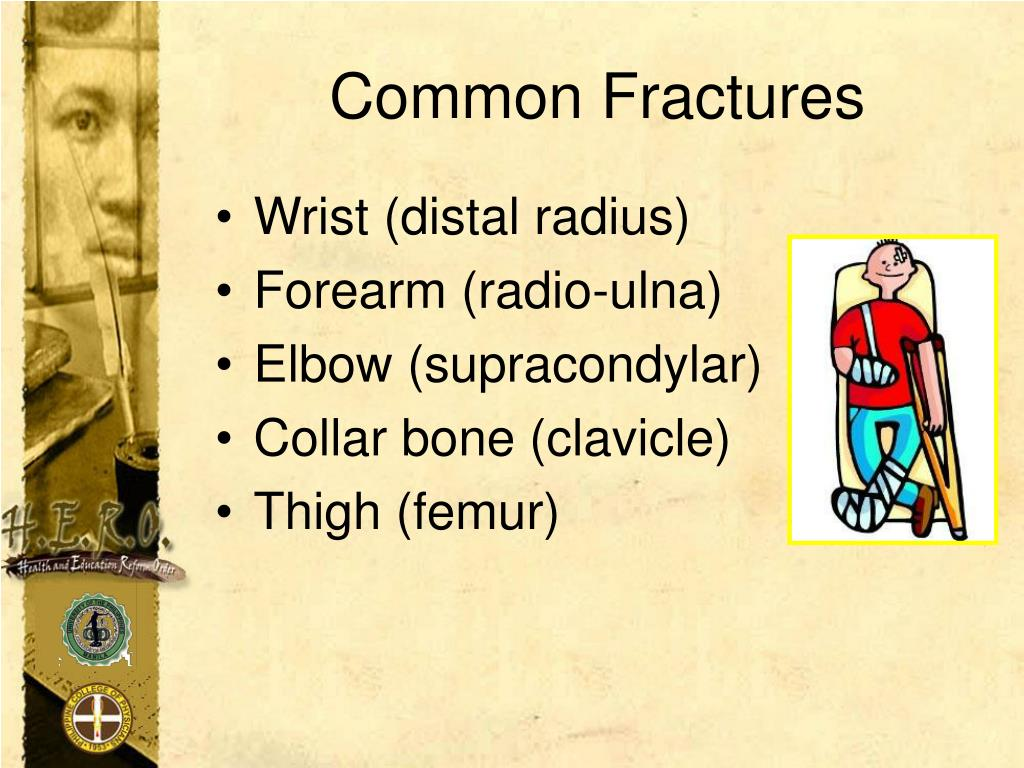 Common Fractures