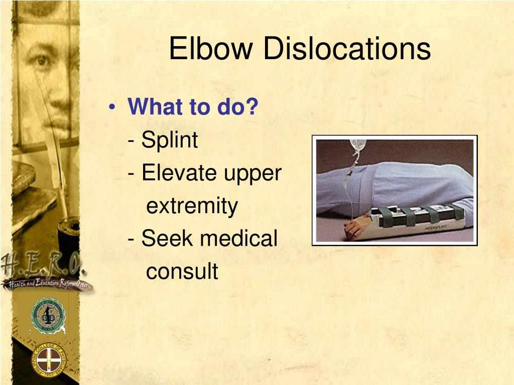 Elbow Dislocations