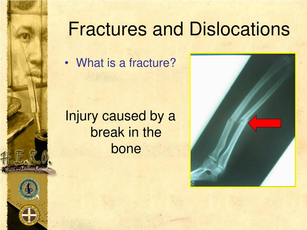 Fractures and Dislocations