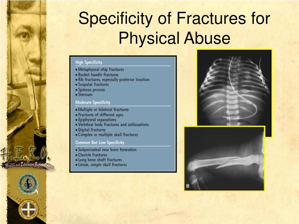 Specificity of Fractures for