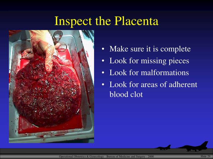Inspect the Placenta