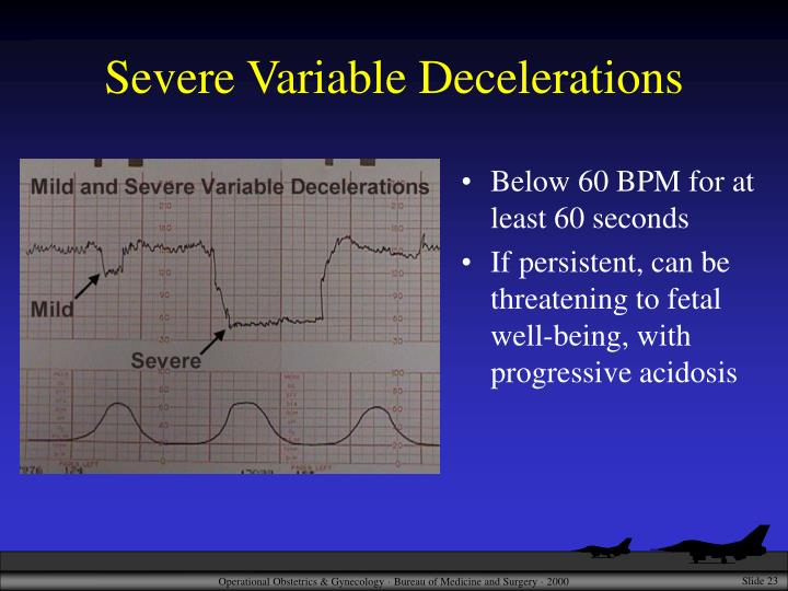 Severe Variable Decelerations