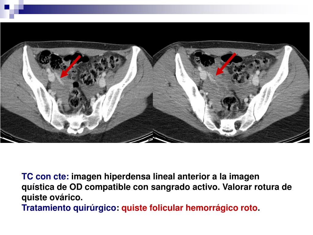 rotura de quiste ovarico hemorragico