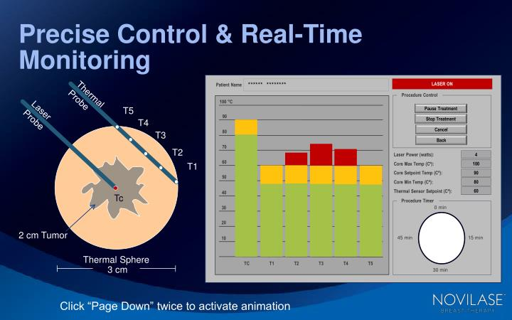 precise control real time monitoring n.