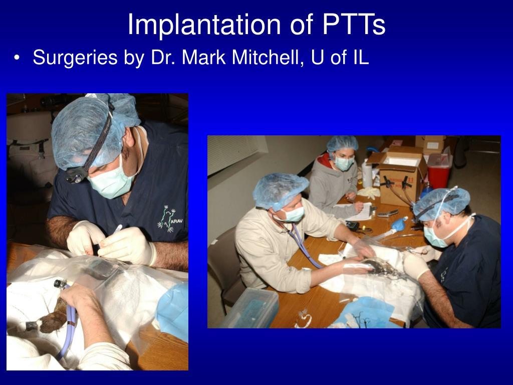 Implantation of PTTs