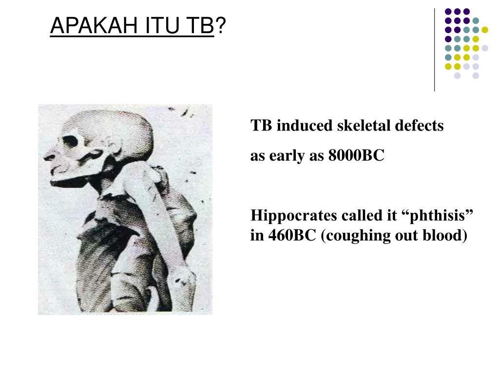 APAKAH ITU TB