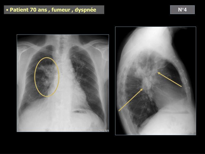 Patient 70 ans , fumeur , dyspnée