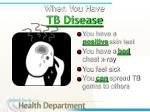 when you have tb disease