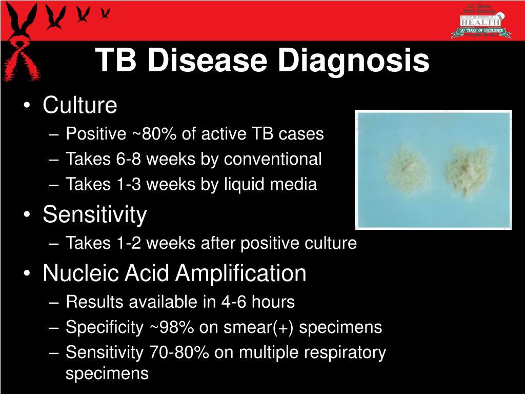 TB Disease Diagnosis