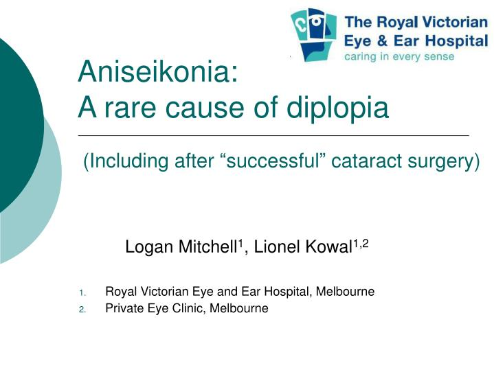 aniseikonia a rare cause of diplopia including after successful cataract surgery n.