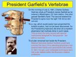 president garfield s vertebrae