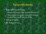 tachyarrhythmias1