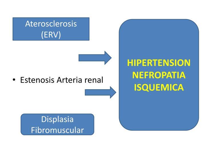 Aterosclerosis (ERV)