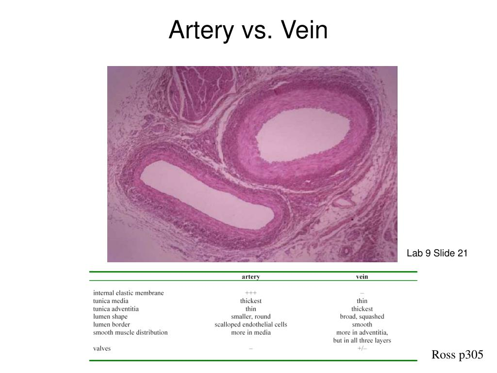 Ppt Artery Vs Vein Powerpoint Presentation Id863691
