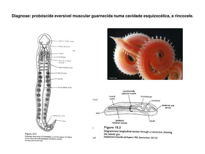 Diagnose: probóscide eversível muscular guarnecida numa cavidade esquizocélica, a rincocele.