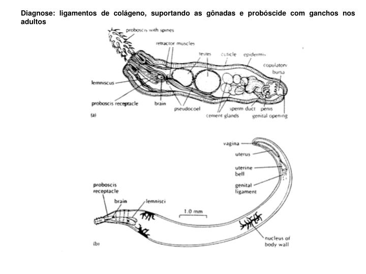 Diagnose: ligamentos de colágeno, suportando as gônadas e probóscide com ganchos nos adultos