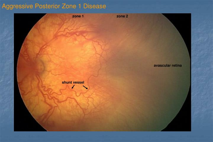 Aggressive Posterior Zone 1 Disease