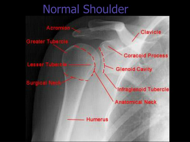 Be D Ec B A B Ce Beff Hip Left as well Normal Shoulder N furthermore Ankle Lg likewise Periloc Vlp Banner in addition Ankle Instability Rev. on foot ankle anatomy