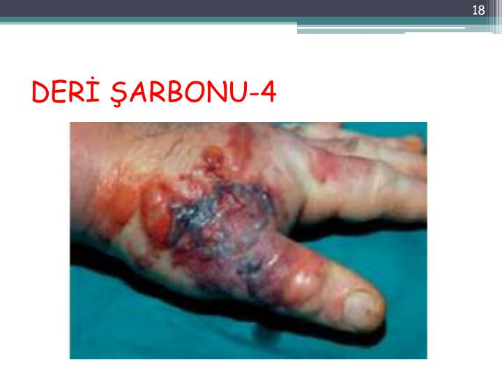 DERİ ŞARBONU-4