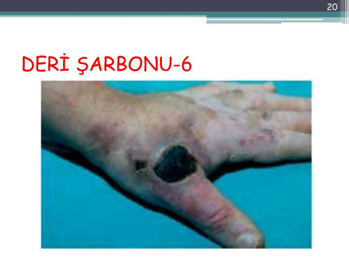DERİ ŞARBONU-6