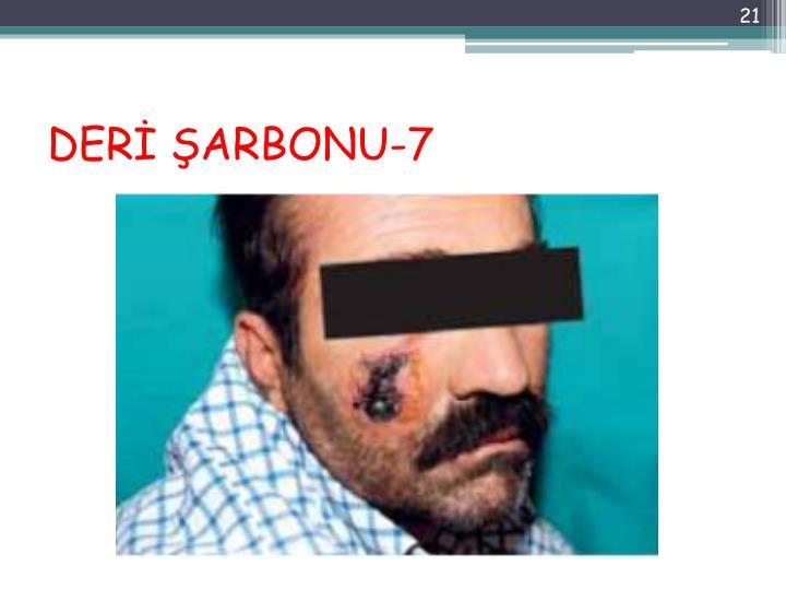 DERİ ŞARBONU-7